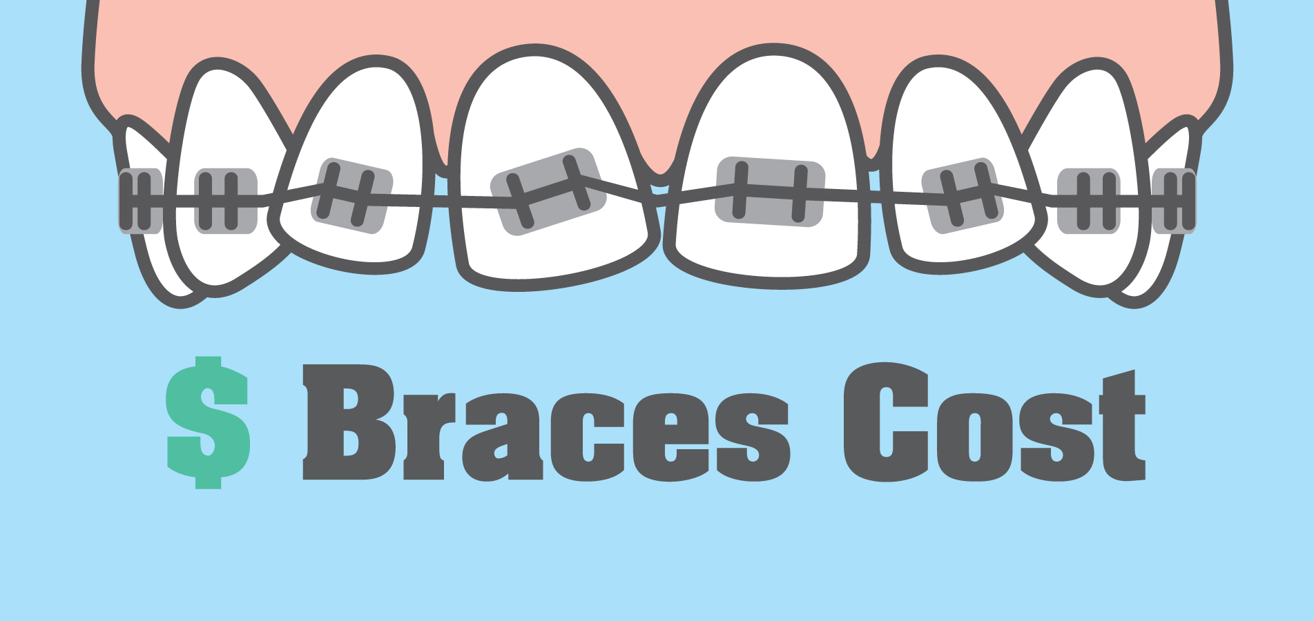 Price range and payment options for braces