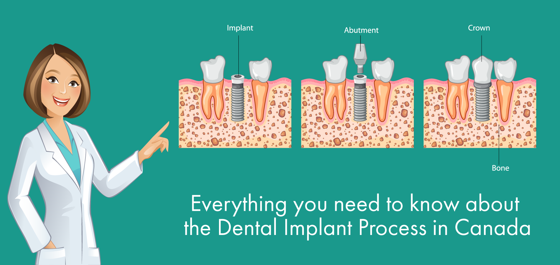 Everything You Need to Know about the Dental Implant Process in Canada