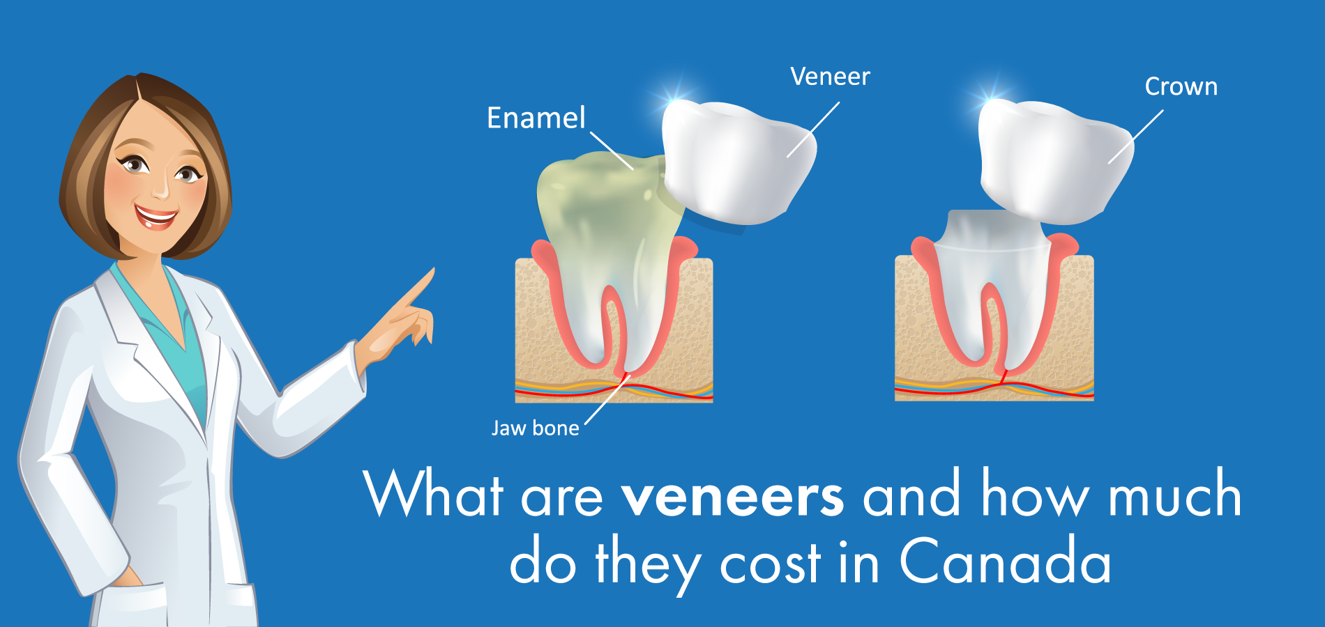 What are veneers and how much do they cost in Canada
