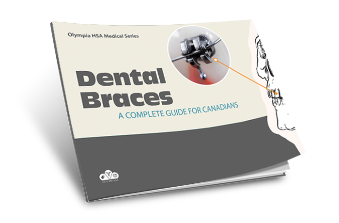The Complete Guide to Dental Braces for Canadians