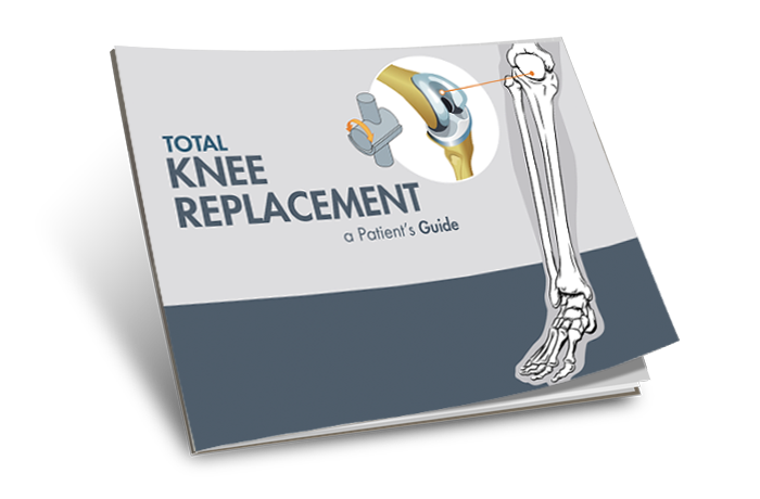 The Guide to Knee Replacement