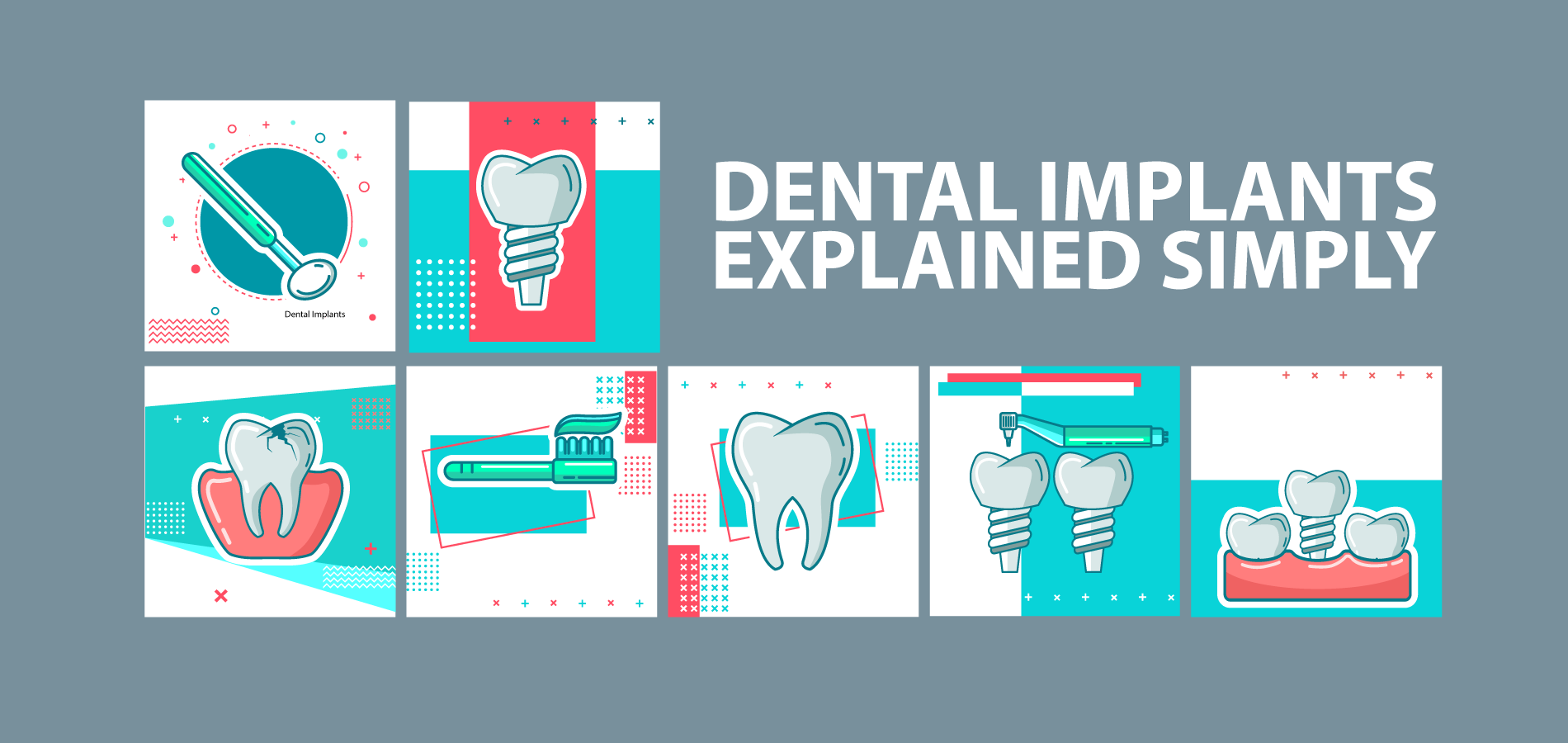 What is the Cost of Dental Implants in Canada?